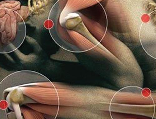 Charla: Nutrición para las Articulaciones